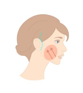 Détail de l'intervention de mini lift du visage et cicratrices